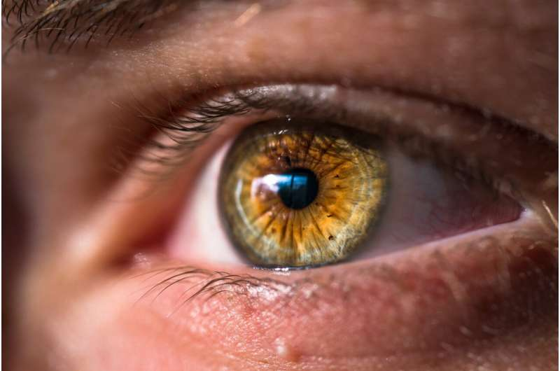 Changes in the eye may offer early warning for Alzheimer's disease